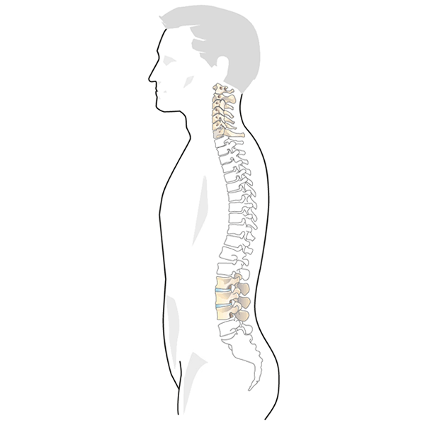 Spinal Column Injury
