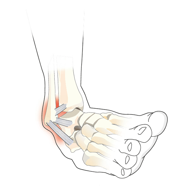 Ankle Ligament Injury