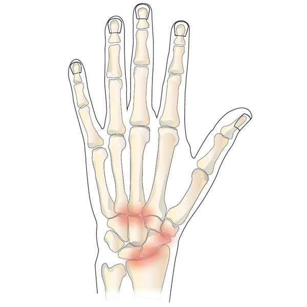 Arthritis of the Wrist or Hand