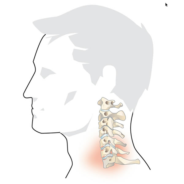 Degeneration of the Cervical Spine
