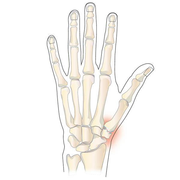 Osteoarthritis of the Base of the Thumb